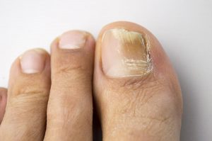 https://www.mayoclinic.org/diseases-conditions/nail-fungus/diagnosis-treatment/drc-20353300
