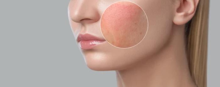 Skin Irritation